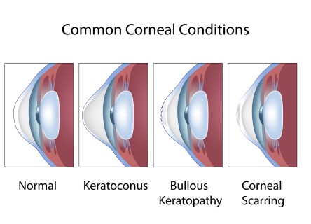 Mini scleral contact lenses